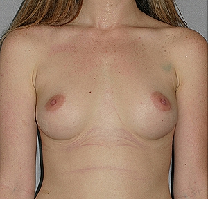 breast-aug-before
