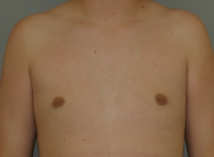 gynecomastia-after
