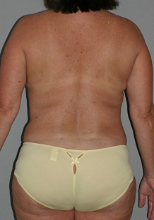 liposuction-after