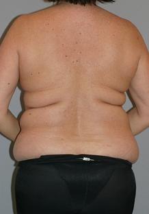 liposuction-before