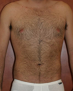 male-lipo-after