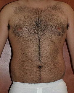 male-lipo-before