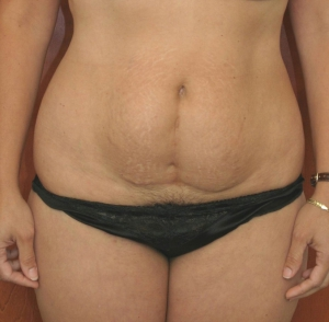tummy-tuck-before